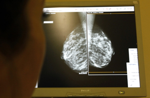 A woman undergoes a mammograms, a special type of X-ray of the breasts, which is used to detect tumours as part of a regular cancer prevention medical check-up at a clinic in Nice