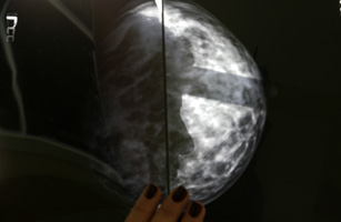 Greek breast cancer patient in hospital
