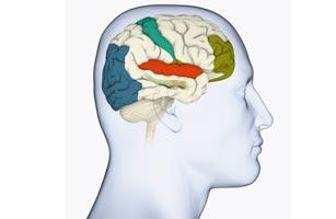 307_Brain