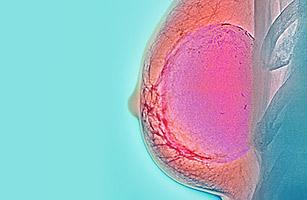 307_healthland_mammogram_0701