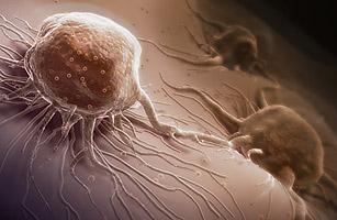 health_cancer_0921
