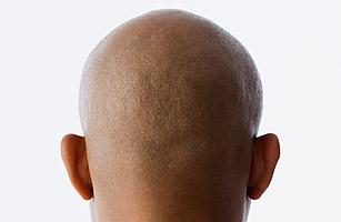 hl_bald_0926