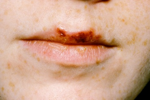 Herpes cold sores