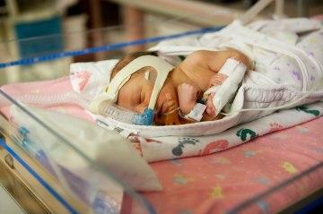A premature baby in the NICU